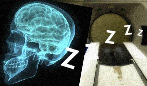 Raio X de um cérebro