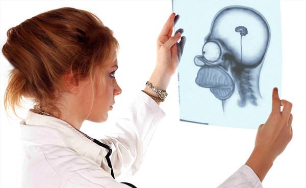 Médica analisando um raio x do cérebro do Homer Simpson