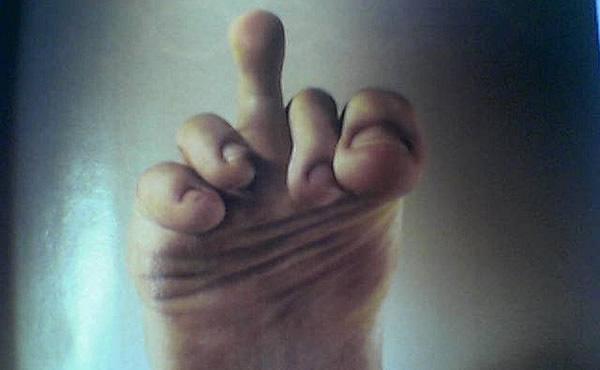 Pé fazendo o dedo do meio